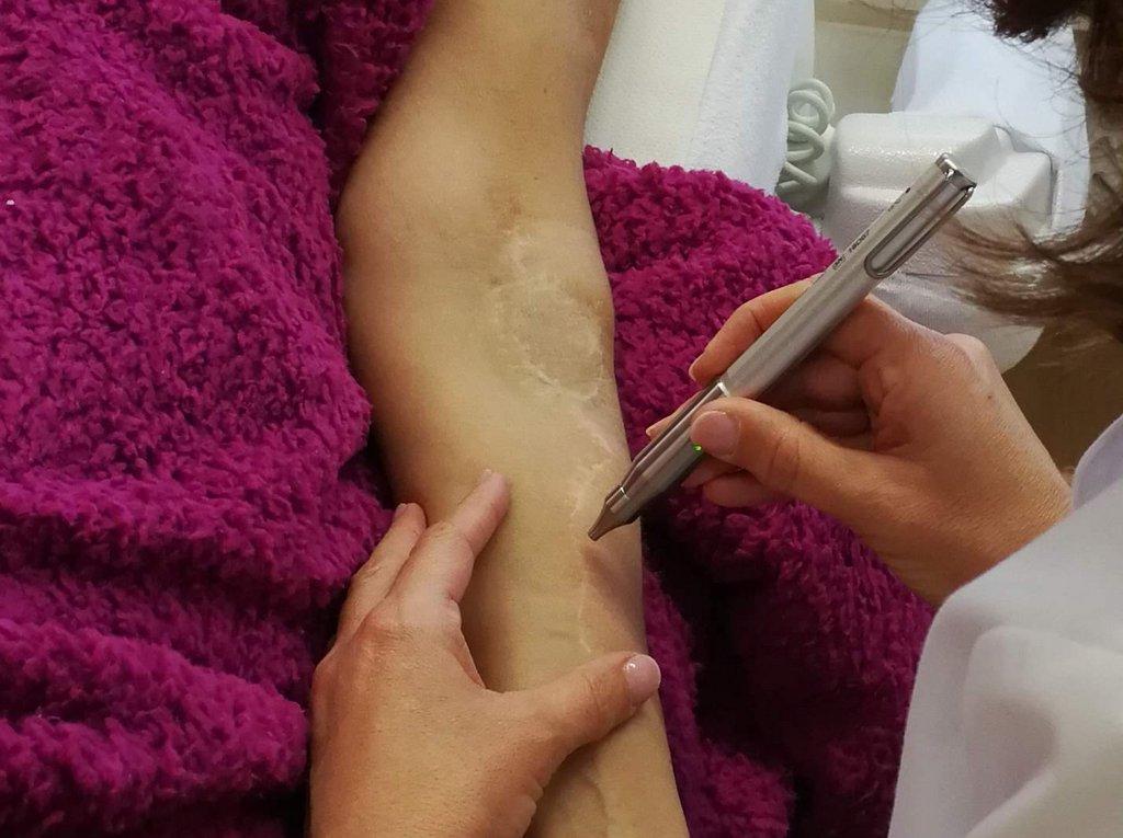 Softlaser Behandlung