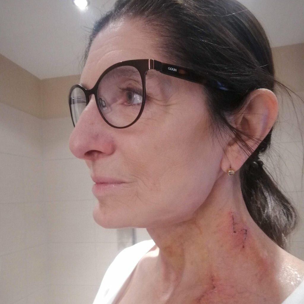 Nach einer plastischen Operation